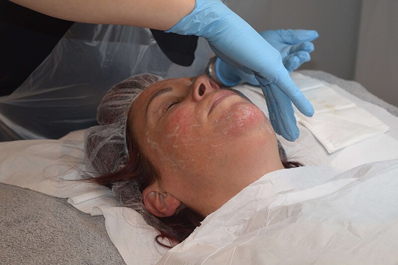 dermaplaning training yorkshire